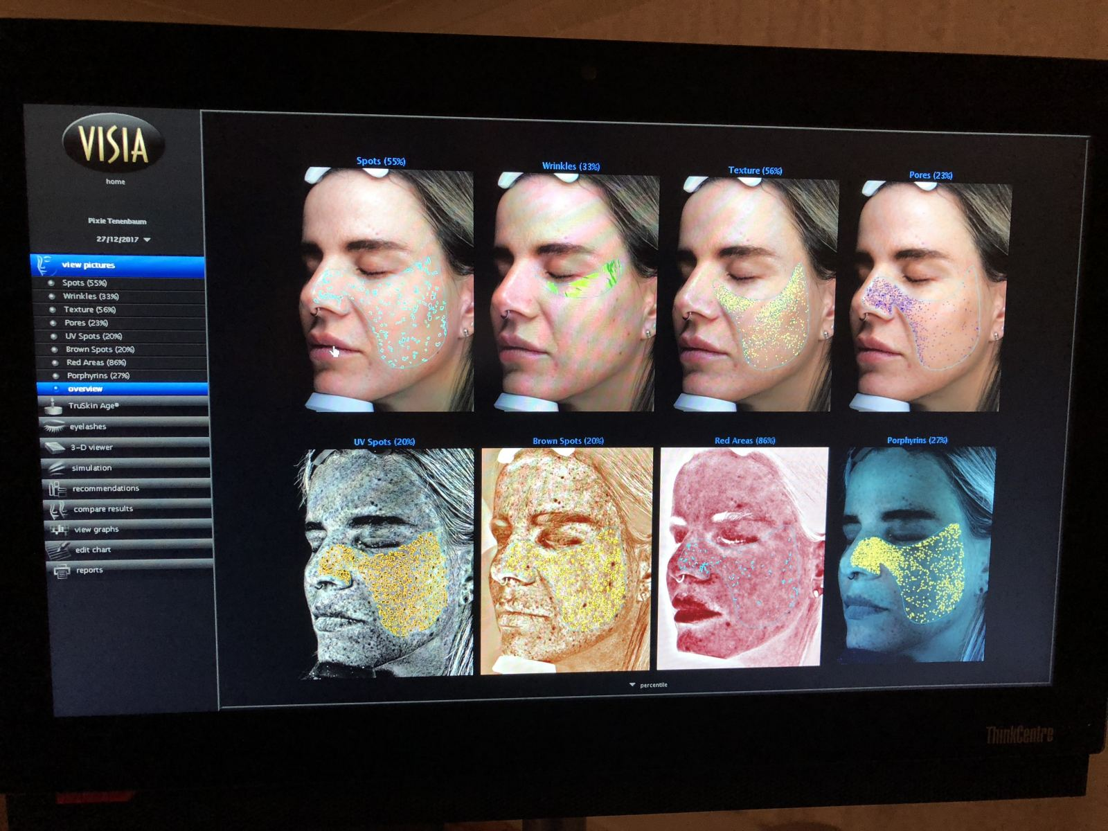 A screenshot of the photographs taken during a Visia Skin Assessment at Aesthetic Beauty Centre in Newcastle, showing pixie Tenenbaum's face close up